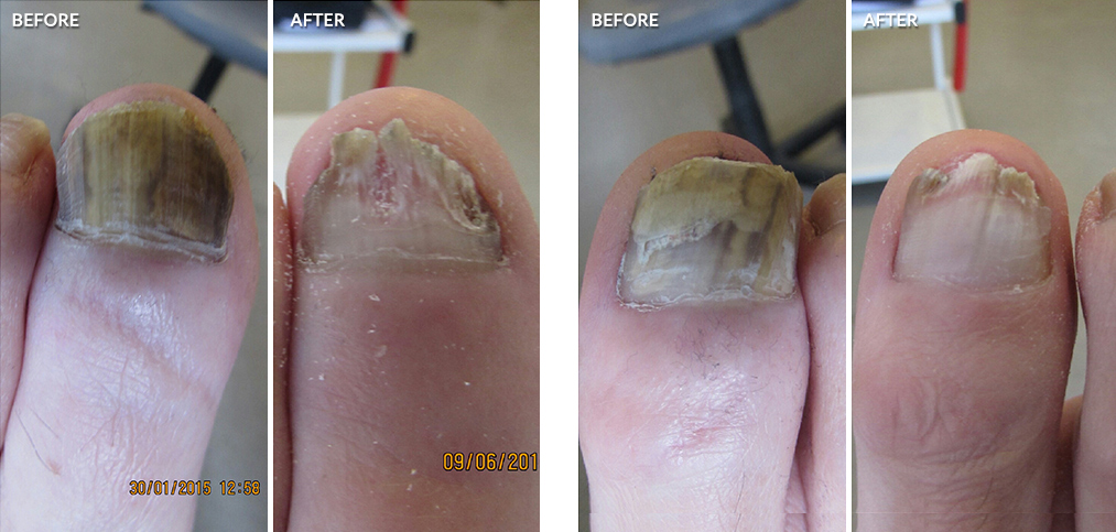 Laser-for-Fungal-Nail-Infections-before-after