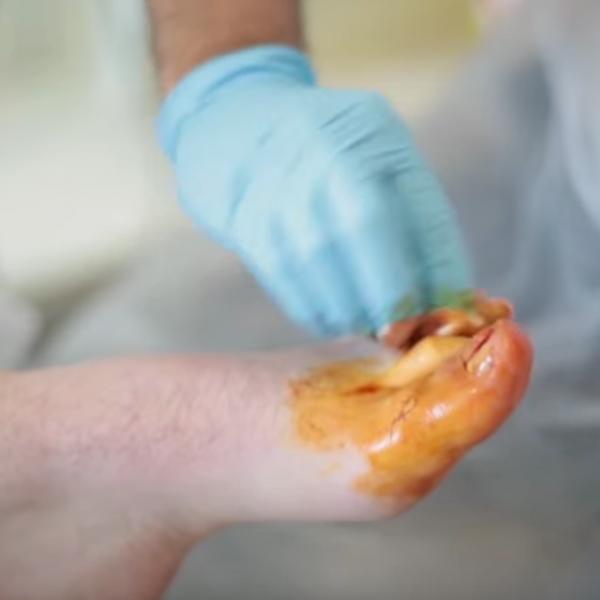 Ingrown Toenail Surgery & Removal Kent | The Foot Clinic